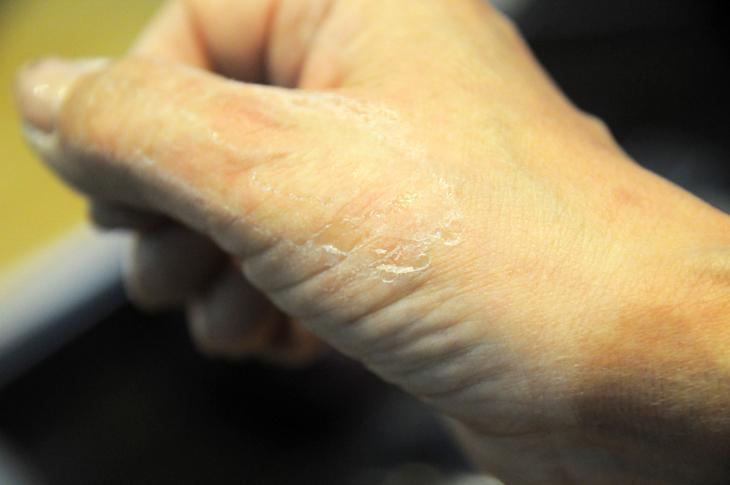 テープ糊 スキンパッチ跡 リムーバー 剥がし剤
